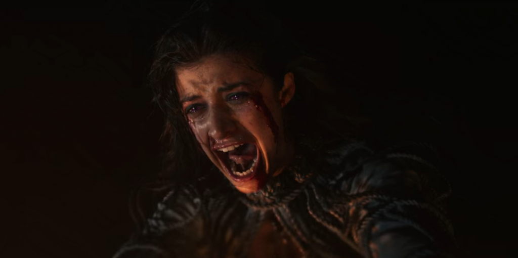 The Witcher Yennefer Actress Suffered Real Life Back Injury During Filming